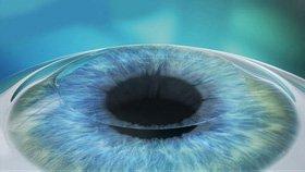Cirugía láser de ojos en Oaxaca - Procedimiento 4