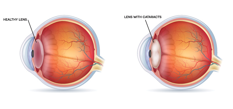 Phacoemulsification vs Conventional Cataract Surgery